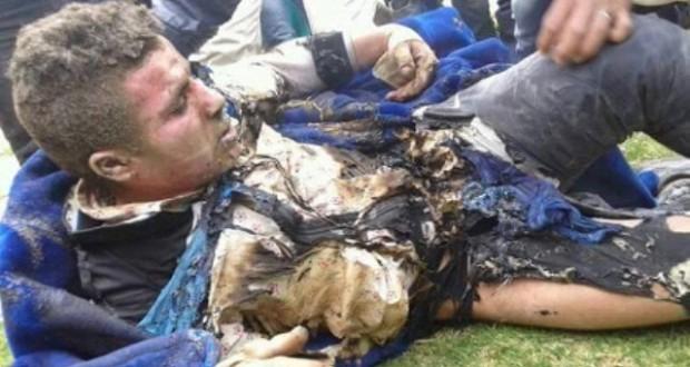 بائع متجول يضرم النار في جسده احتجاجا على مصادرة بضاعته